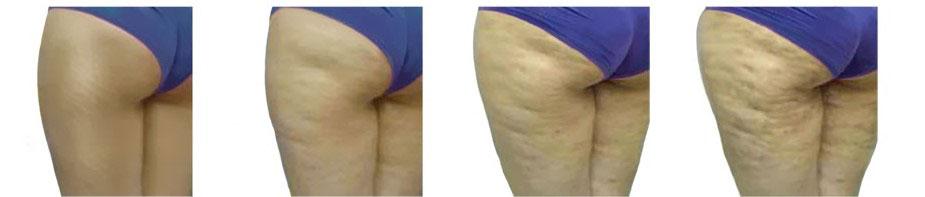 Come eliminare la cellulite: riconoscere il grado